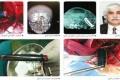 استخراج قلم من مخ مواطن كويتى بعملية جراحية نادرة