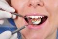 علماء يطورون حشوةً للأسنان يجعلها تلتأم تلقائياً
