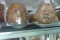 زيارة لمخبز الأعضاء البشرية المبتورة !