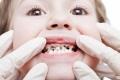 ما مرض الأسنان الطباشيرية؟