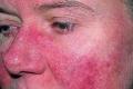 14 معلومة مُهمة عن «الذئبة الحمراء»: مرض ليس له أعراض يدمر الجسد
