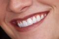 باحثون يستخدمون خلايا اللثة لتخليق اسنان جديدة