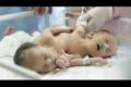 في أول حالة فلسطينياً ... بالفيديو: ايمان واماني .. جسدان بقلب واحد