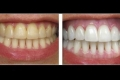 تخلص من تكلس الأسنان ورائحتها بهذه الخلطة السهلة!