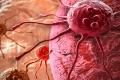 أغذية تحمي من سرطان البروستاتا