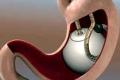 اختراع دواء جديد ينقص الوزن من 13 إلى 15 كغم خلال أسابيع فقط