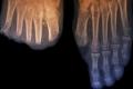 البطء في علاج السكري يزيد احتمال بتر جزء من قدم المصاب 20 ضعفاً