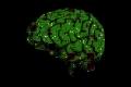 زرعات دماغية جديدة تعيد البصر إلى المكفوفين