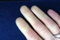 قد يكون هذا هو السبب وراء برودة يديك الدائمة.. إنه مرض رينود!