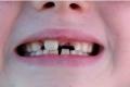 دراسة: زيت جوز الهند يمكن أن يقاوم تسوس الأسنان