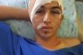 وفاة الشاب محمد جرار بحادث سي بسيط... والعائلة تتهم الأطباء