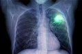 6 علامات تشير إلى الإصابة بسرطان الرئة