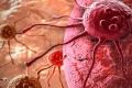 تعرف على حيلة السرطان الخبيثة لخداع جهاز المناعة في حربهما السرية