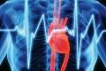 الكالسيوم مؤشر على النوبات القلبية