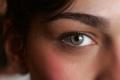 """أطباء يحذرون من """"خطأ بسيط"""" قد يسبب العمى"""