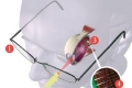 زراعة شبكية بيولوجية تعمل بالليزر تمنح الرؤية لفاقدي نعمة البصر