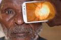 تطبيق للهواتف الذكية قادر على تشخيص أمراض العين