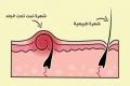 كيف تتجنب نمو الشعر تحت الجلد؟ إليك هذه الخطوات التي يمكنك اتباعها