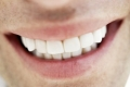 خبر رائع: مادة جديدة تجعل الأسنان مضادة للتسوس!