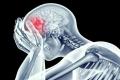 هكذا تكشف إصابة شخص ما بسكتة دماغية وهذا ما عليك فعله!