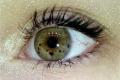 هل تلاحظ نقاط ملونة في حدقة عينك؟ إياك أن تهملها !