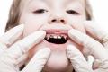 كيف تكشف عن تسوس الأسنان قبل زيارة الطبيب؟