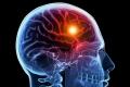 دواء موجود منذ 22 عاماً يعالج السكتات الدماغية لكن الأطباء يمنعونه عن المرضى!.. فما سره؟