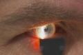 """ماذا تعرف عن مرض """"إنفلونزا العيون""""؟"""