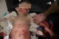 وفاة طفل في مستشفى البشير بعد أن نهشت الكلاب الضالة أعضاءه التناسلية