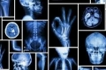 ما هو التصوير باستخدام الأشعة السينية؟