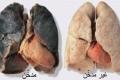 تعرف على الطعام الوحيد الذي يقوم بتنظيف الرئتين من اثار التدخين بصفة كلية.....إحرص على أكله ...