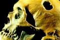لماذا كان الإنسان القديم يثقب جمجمته؟