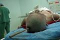 شاهد الصور المرعبة.. سيخ حديد ساقط من 25 متر يدخل في رأسه ولم يمت