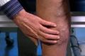 الزنجبيل والثوم - علاج دوالي الساقين بمواد طبيعية