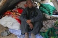 شاهد الصور... محمد لطيف الرجل بلا وجه تزوج و يخشى على مصير طفله القادم