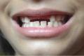 هكذا يدمر الإجهاد صحة أسنانك!!