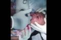 فيديو مروّع.. هذا ما سحبه طبيب من فم طفل!