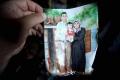 تفاصيل تفطر القلب ...كيف يعيش الطفل أحمد دوابشة بعد عامين على المحرقة؟