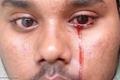 شاب يبكي دما.. ونتائج فحوصاته تحير الأطباء