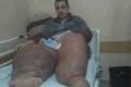"""بالصور.. الشاب صلاح البلبيسي المصاب بـ """"داء الفيل"""" النادر يناشد الرئيس بمنحه تحويله طبية"""