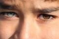 لماذا يمتلك بعض الناس عيون ذات ألوان مختلفة؟