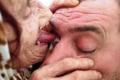 عجوز بوسنية تستخدم لسانها لعلاج مرضاها من العمى!