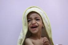 1.4 مليون طفل يواجهون الموت هذا العام بسبب الجوع في ...