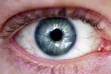 """شبكية """"الخلايا الجذعية"""".. أمل جديد للمصابين بالعمى"""