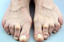 تعرف على أنواع تشوهات القدم وطرق علاجها