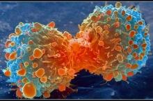 تطور لافت في محاربة مرض السرطان