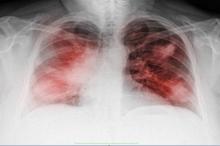 3 علامات تحذيرية غير معتادة قد تكشف الإصابة بسرطان الرئة