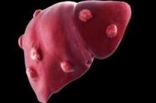 أعراض خطيرة تسبب سرطان الكبد.. اكتشفها