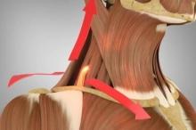 تعرف على العضلات الأخمعية المسؤولة عن آلام الكتف