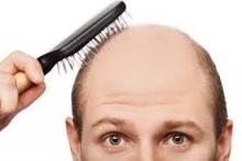 كيف تقلل من تساقط الشعر؟
